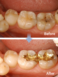 mplant_dental_img_04_02