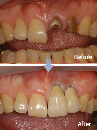 mplant_dental_img_04_04