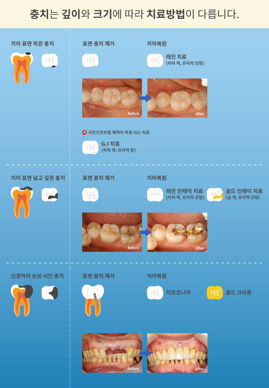 mplant_dental_imgl_03_2