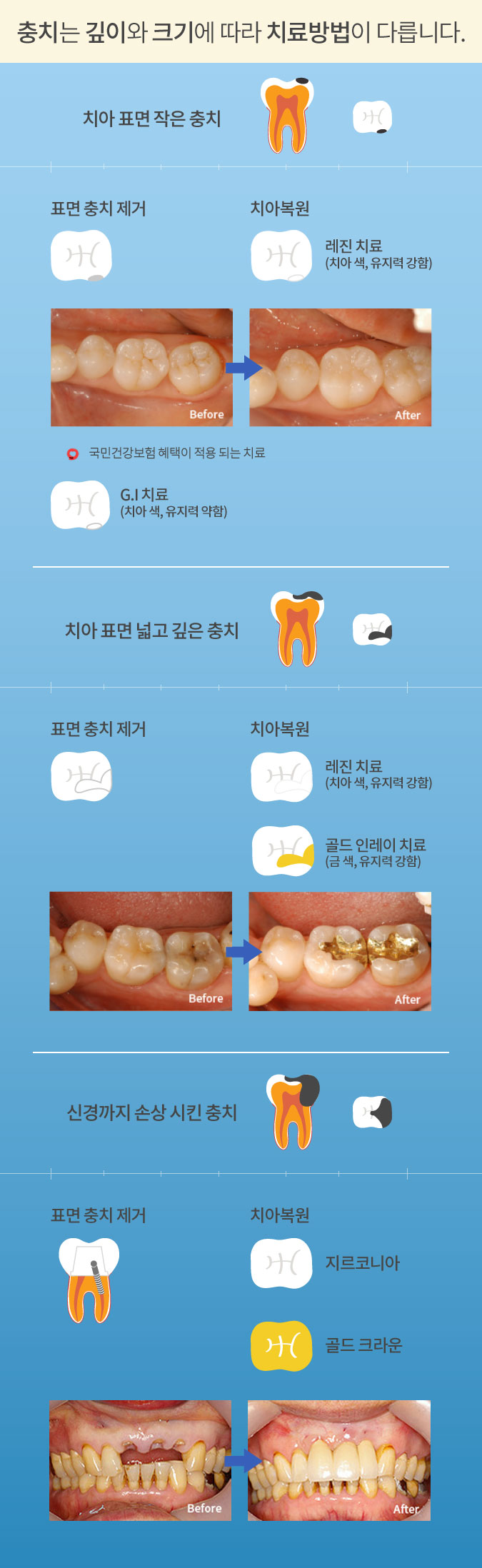 mplant_dental_imgl_03_2_m