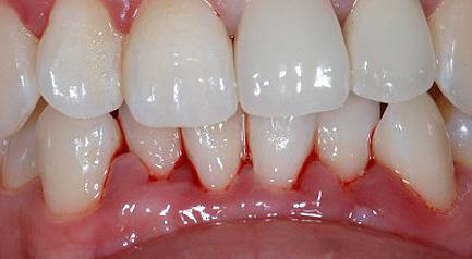 Mplant Gum Img1