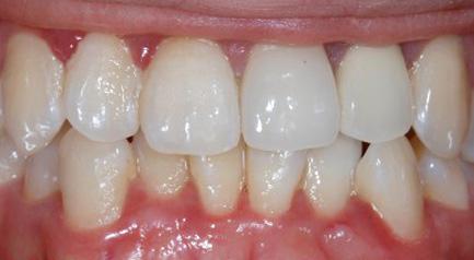 Mplant Gum Img2