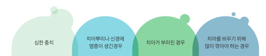sub_endodontic-treatment_info01